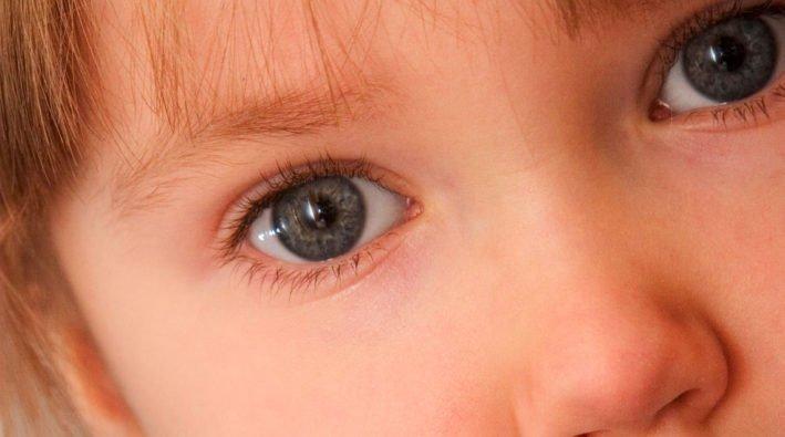 congiuntivite-allergica-bambini