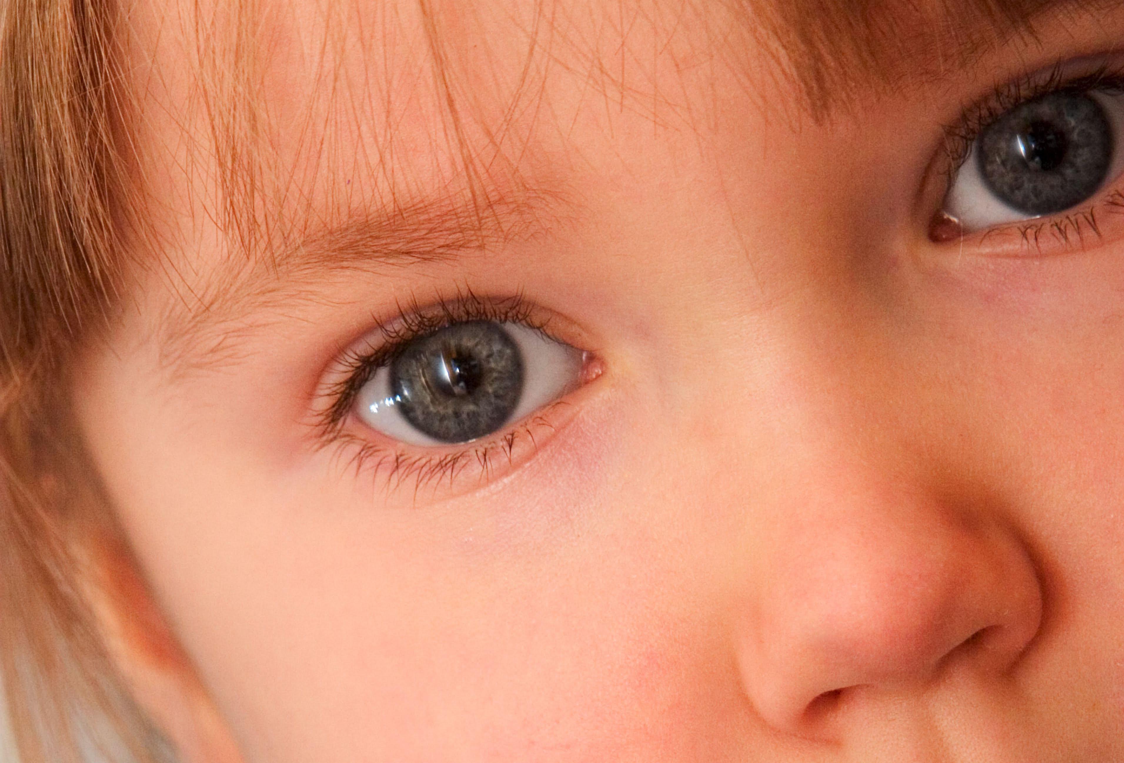 malattie comuni bambini